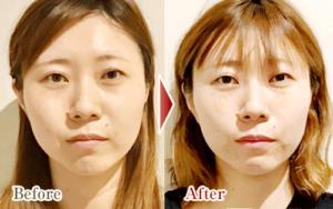 施術回数5回目の小顔矯正