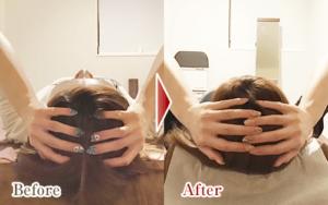 施術回数5回目の小顔矯正の頭